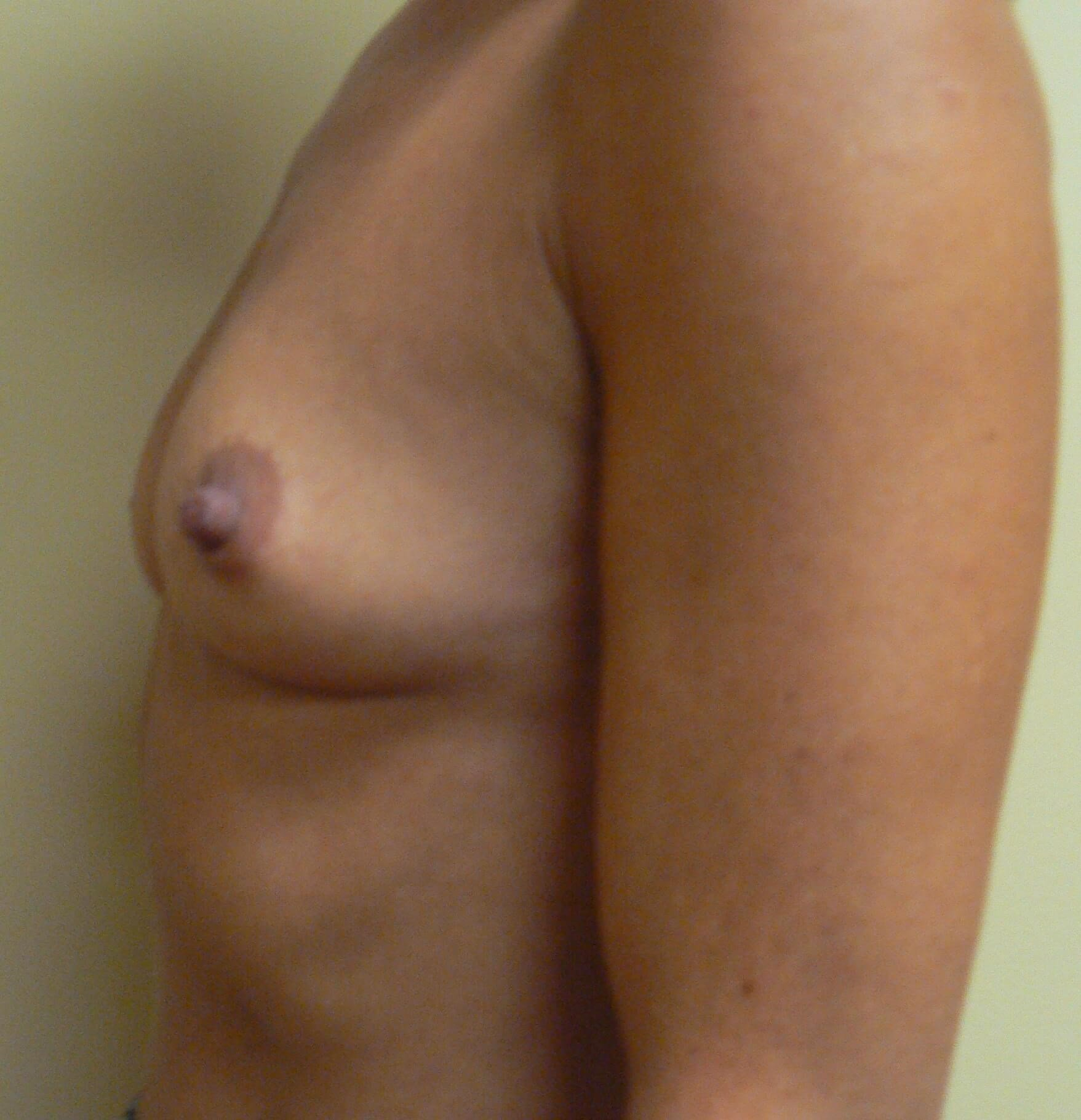 Shaped gel breast implants Before