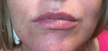 Lips by Alison Before