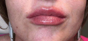 Lips by Alison After