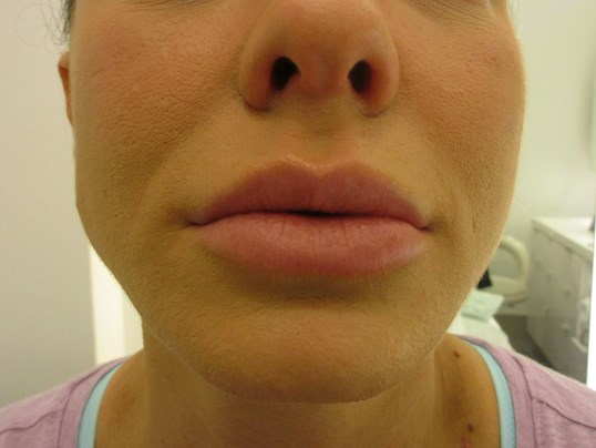 Lip Injections - Juvederm Before