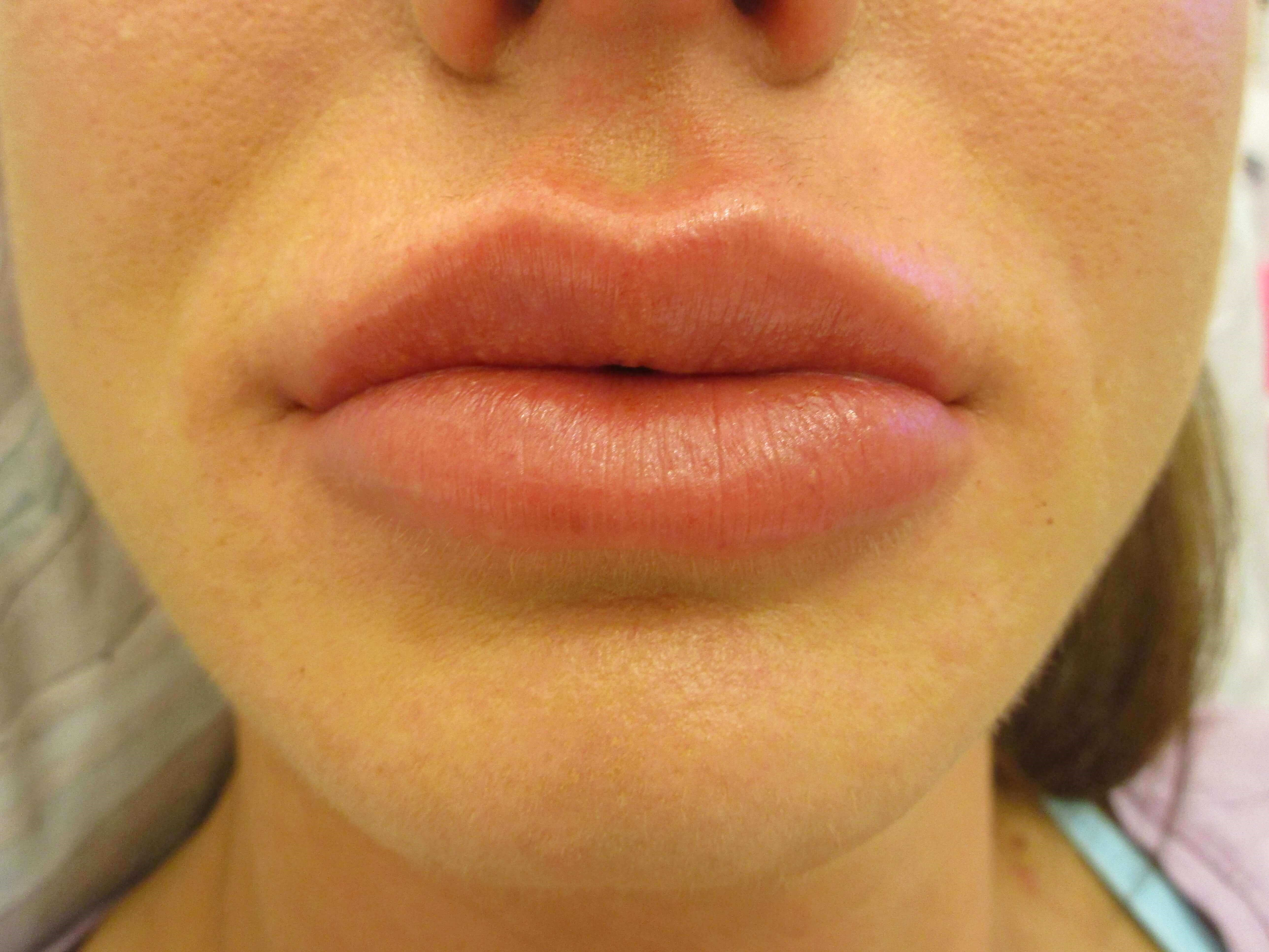 Lip Injections - Juvederm After