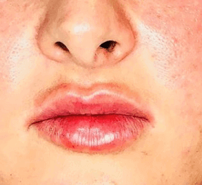 Juvederm Lips After