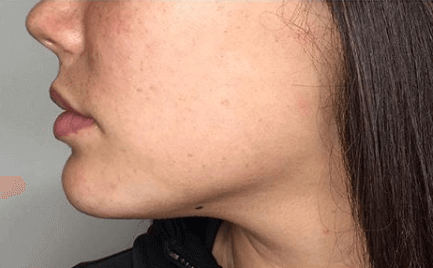 Jawline Contouring Before