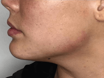 Jawline Contouring After