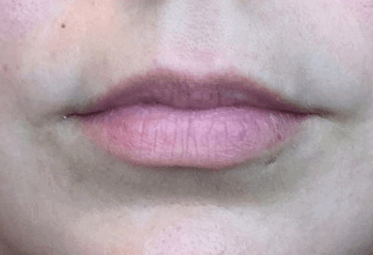 Juvederm Lips Before