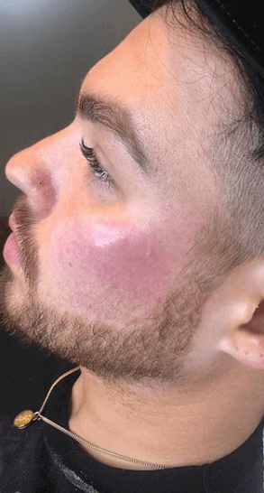 Male Cheek Augmentation After