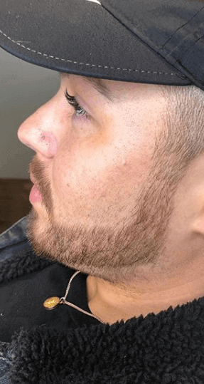 Male Cheek Augmentation Before
