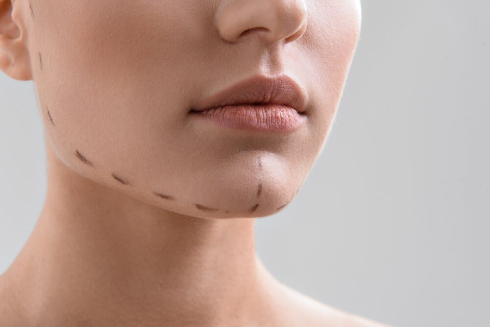 Chin With Surgical Lines Photo