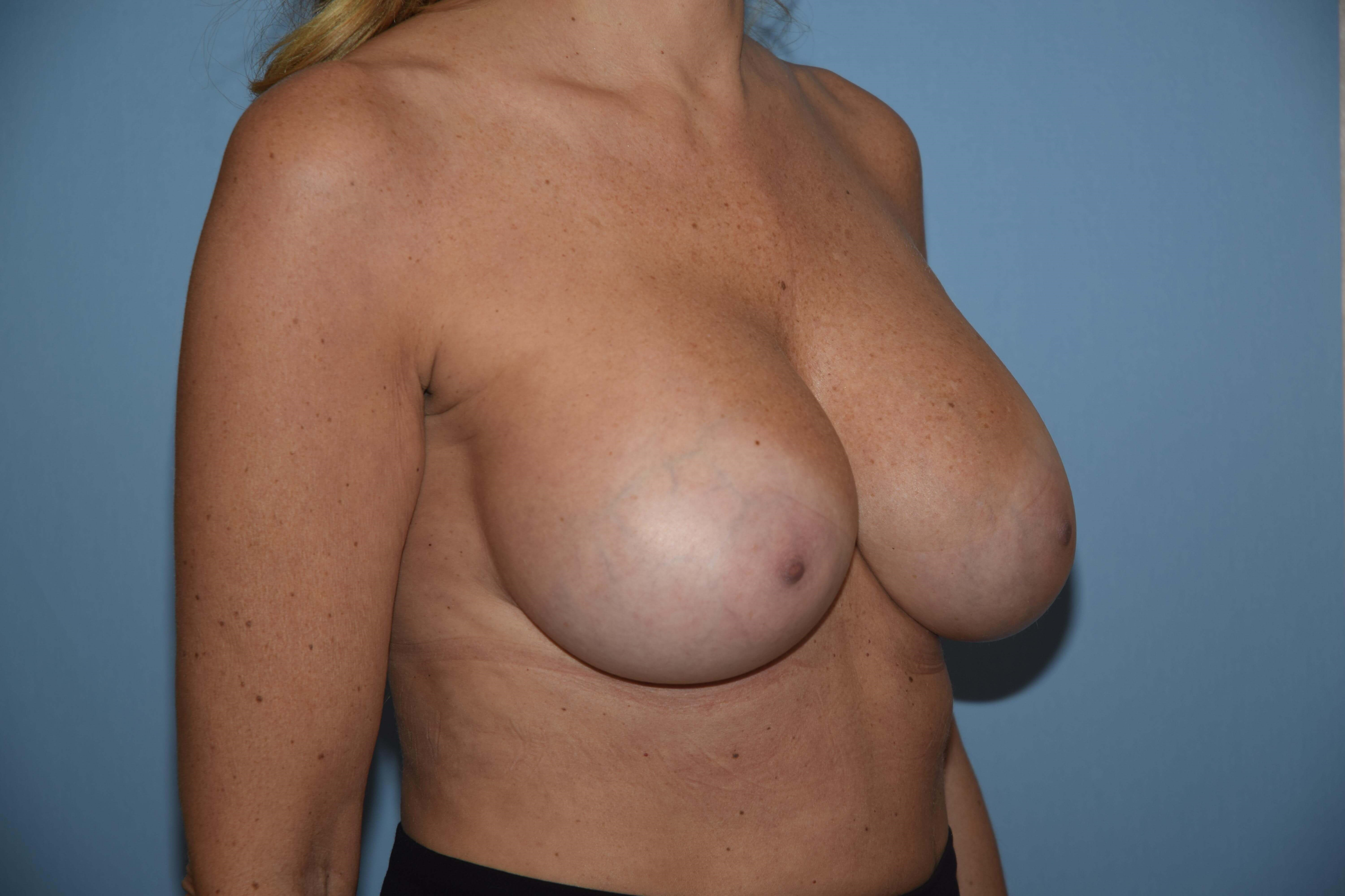 Breast Augmentation 495cc After