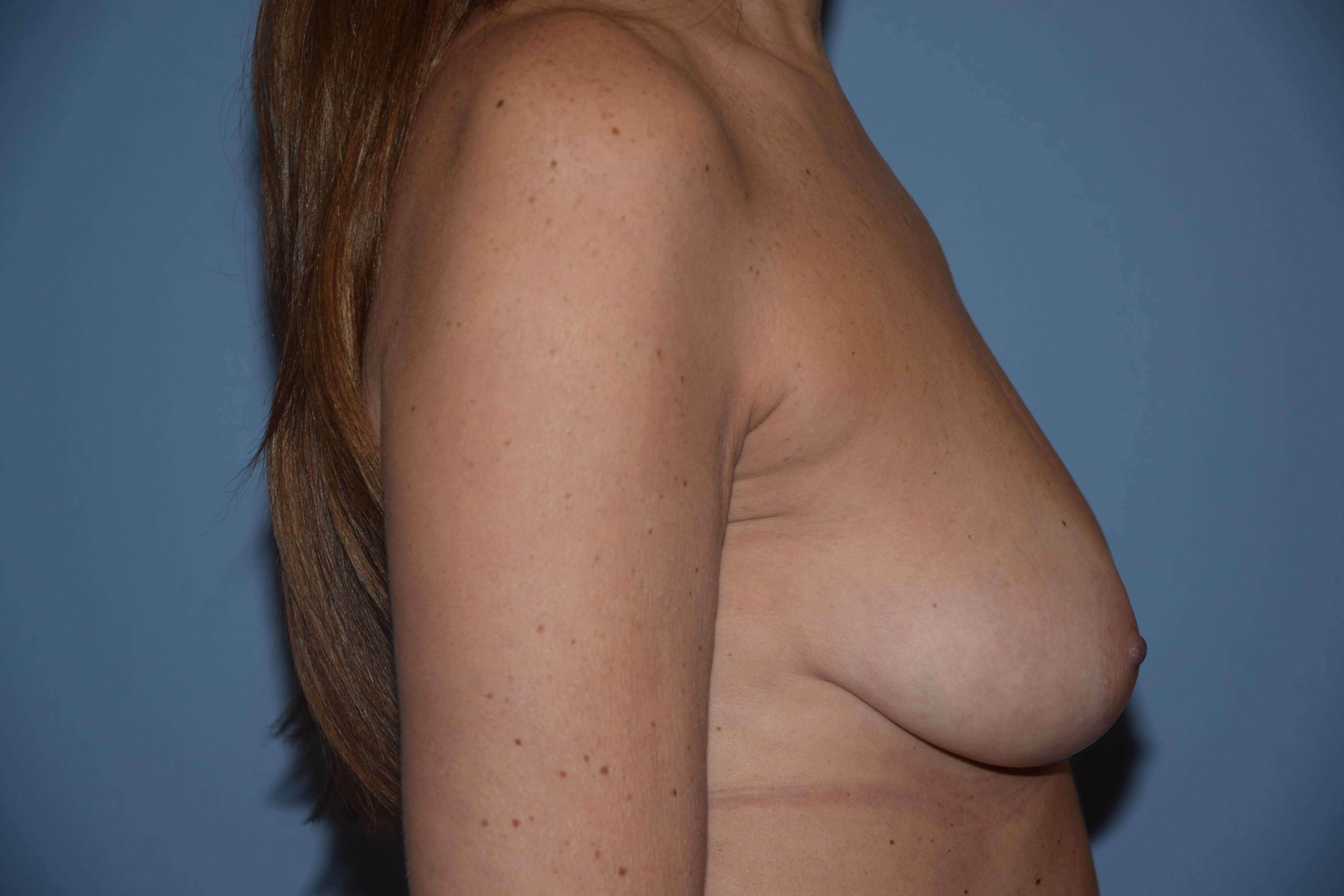 Breast Augmentation 495cc Before