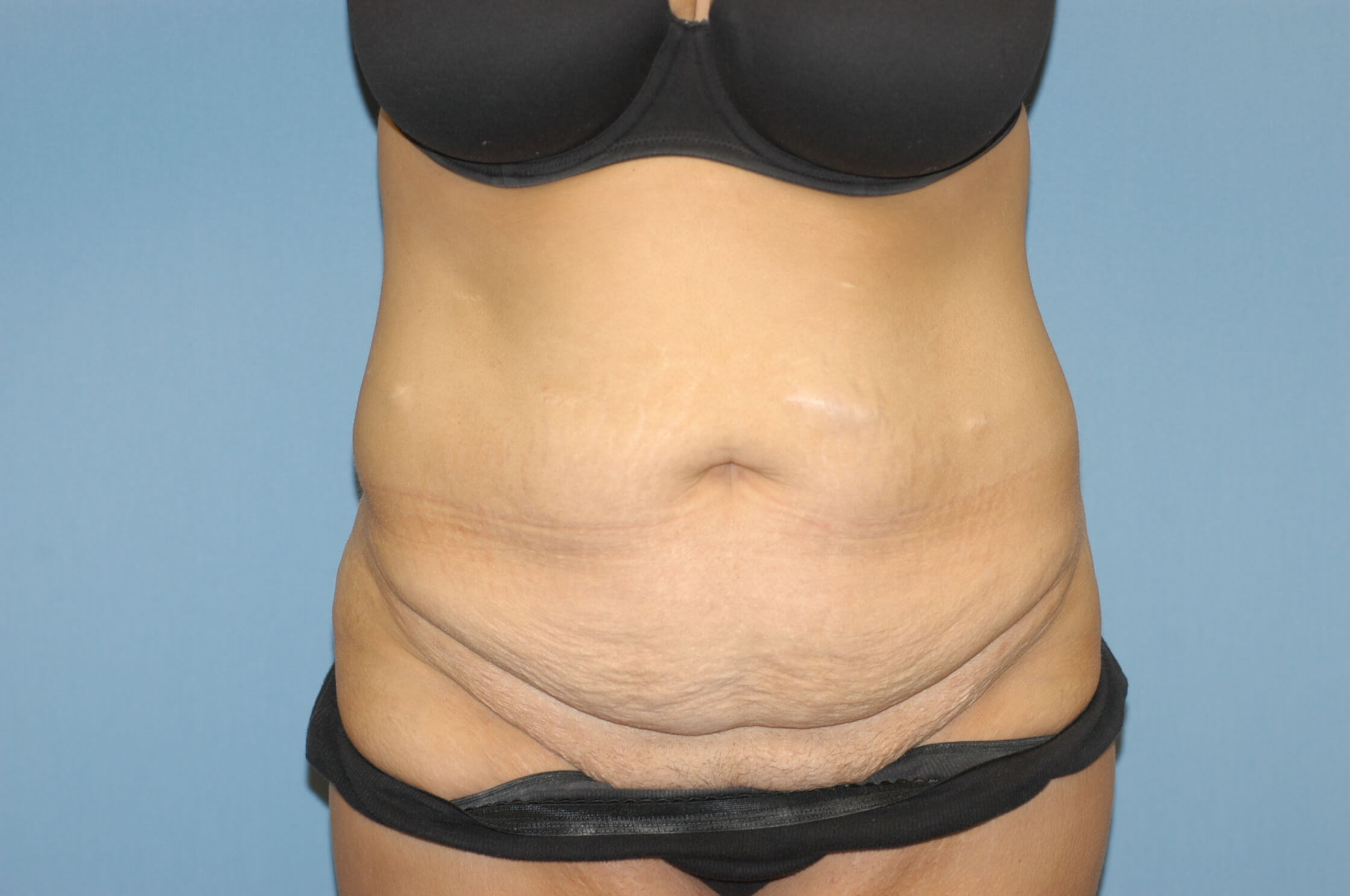 Ny Woman Has Extended Abdominoplasty After Gastric Bypass Surgery