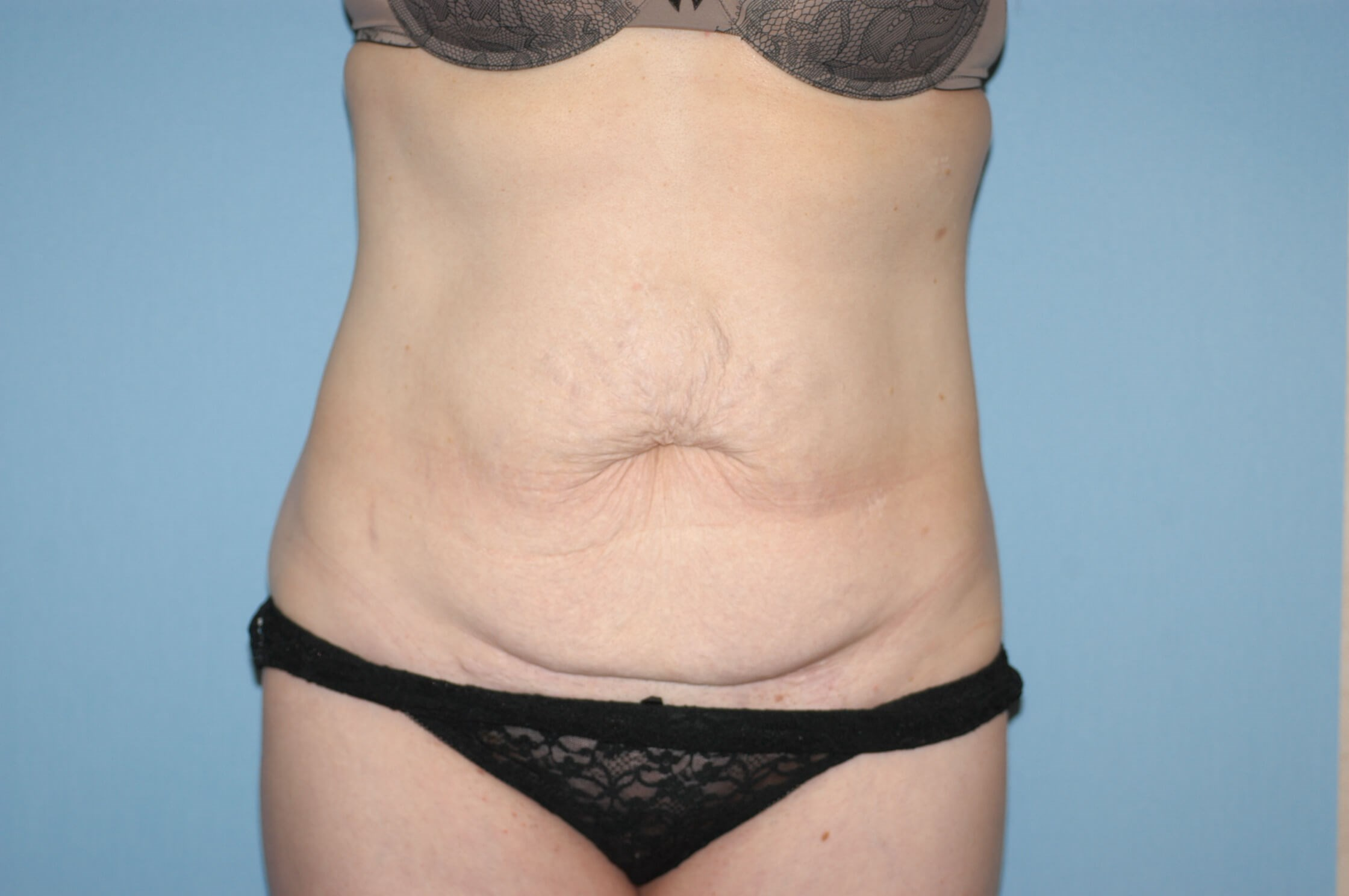 Long Island Mom Has Tummy Tuck After Weight Loss Surgery With Dr