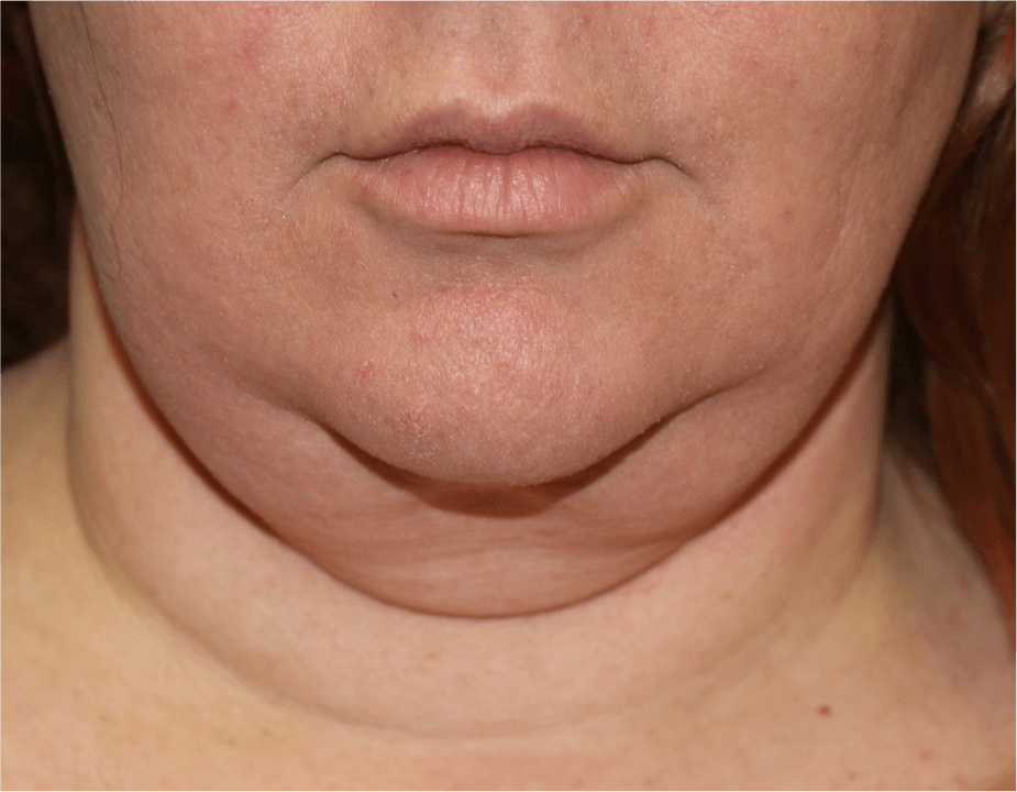 Neck Liposuction Before