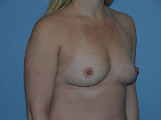 3/4 View Breast Augmentation Before