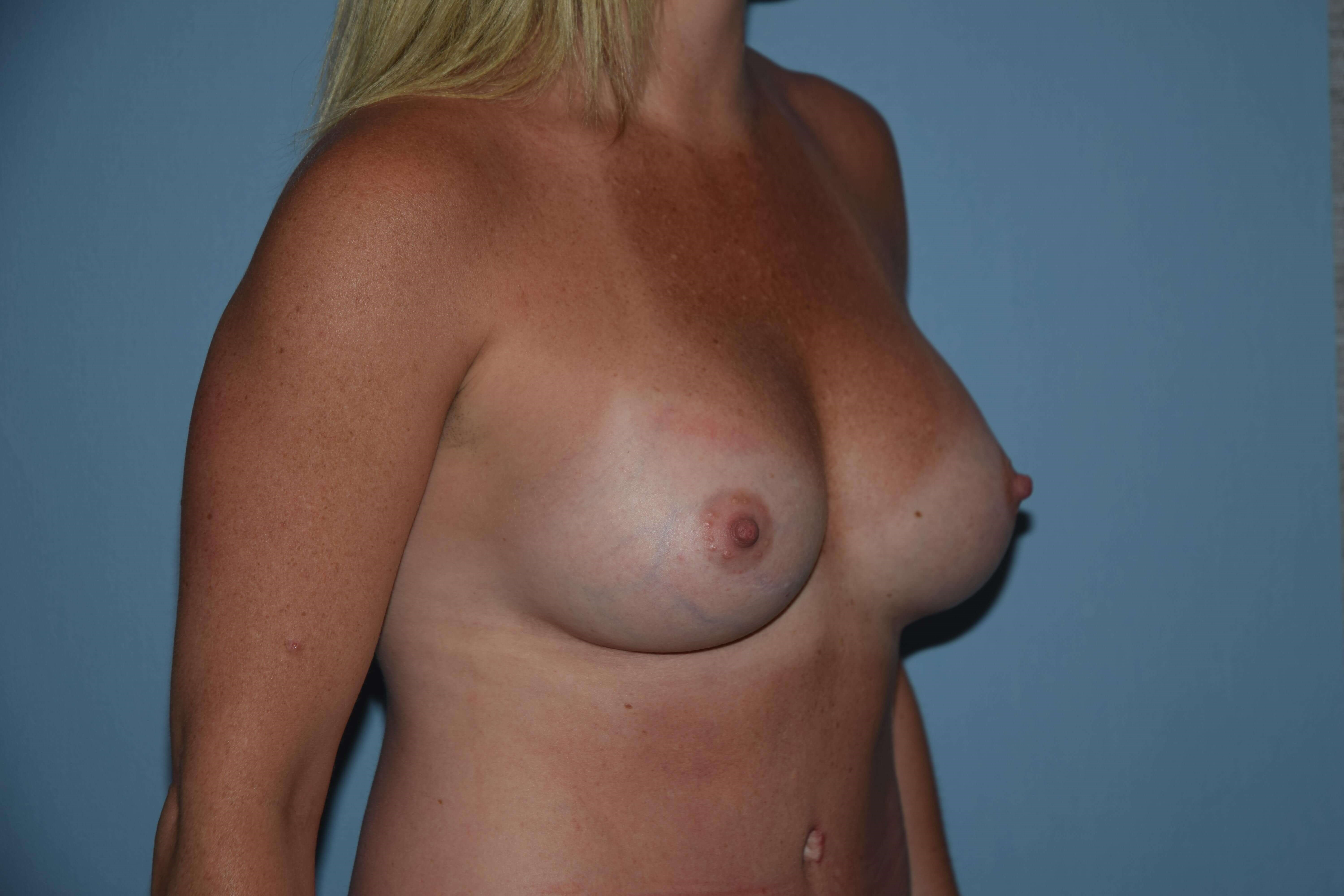 3/4 View Breast Augmentation After