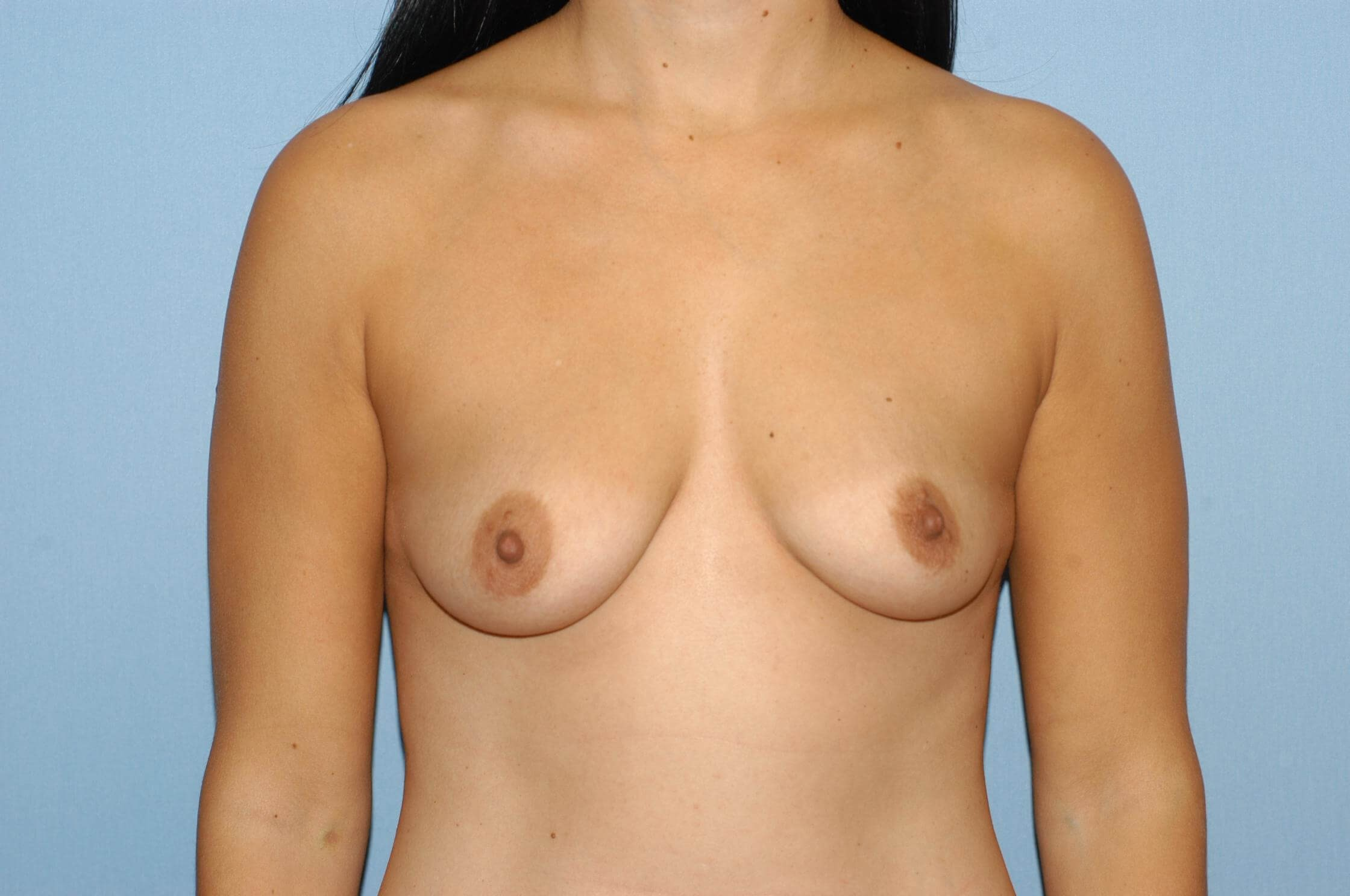 Front View Breast Augmentation Before