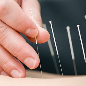About Acupuncture