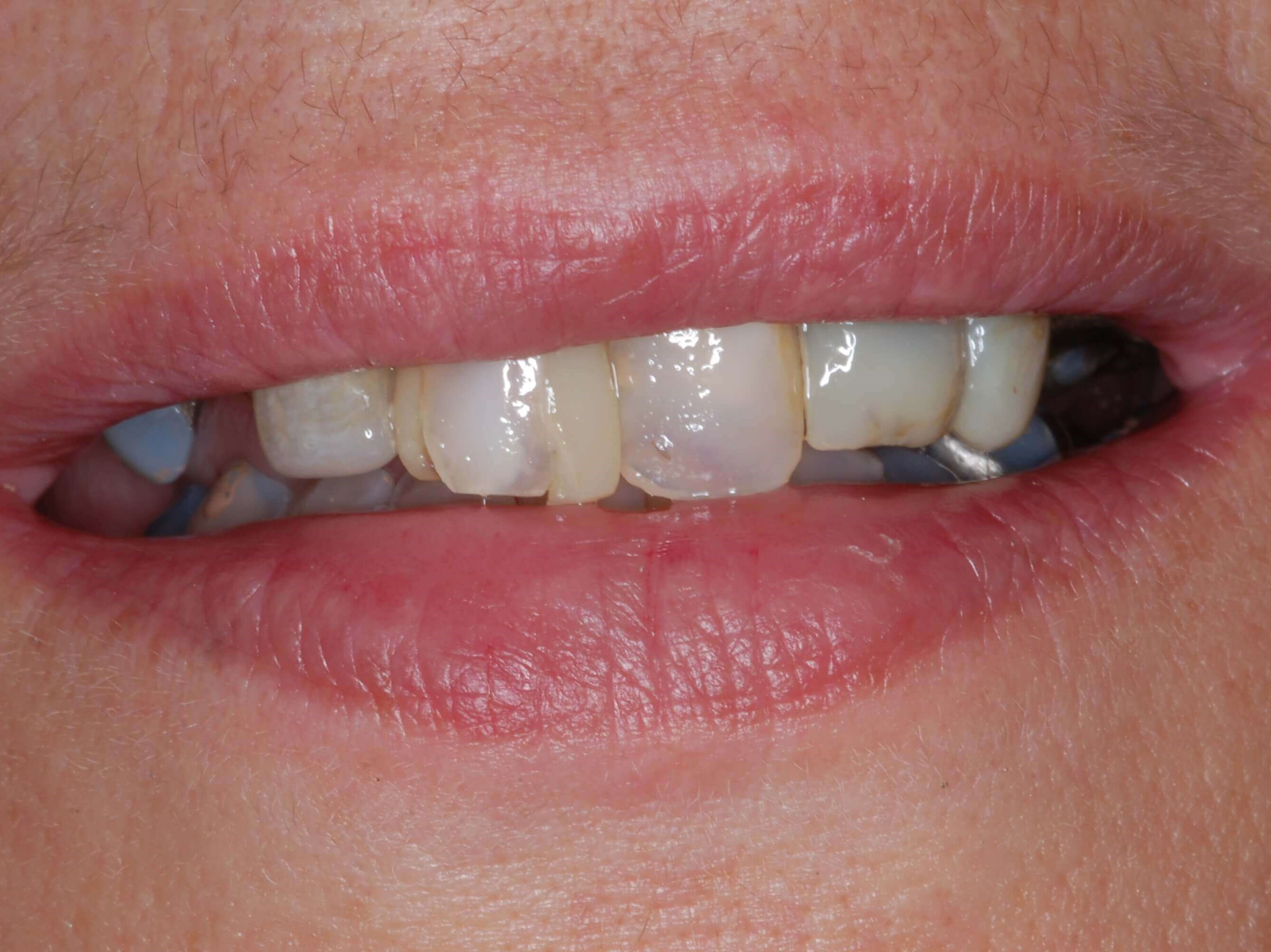 Before & After Denture Before