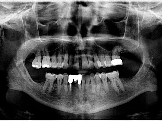 Before Before - Panoramic x-ray