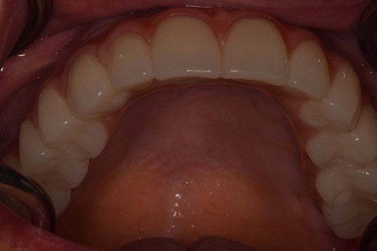 PMMA (intermediate) No palate