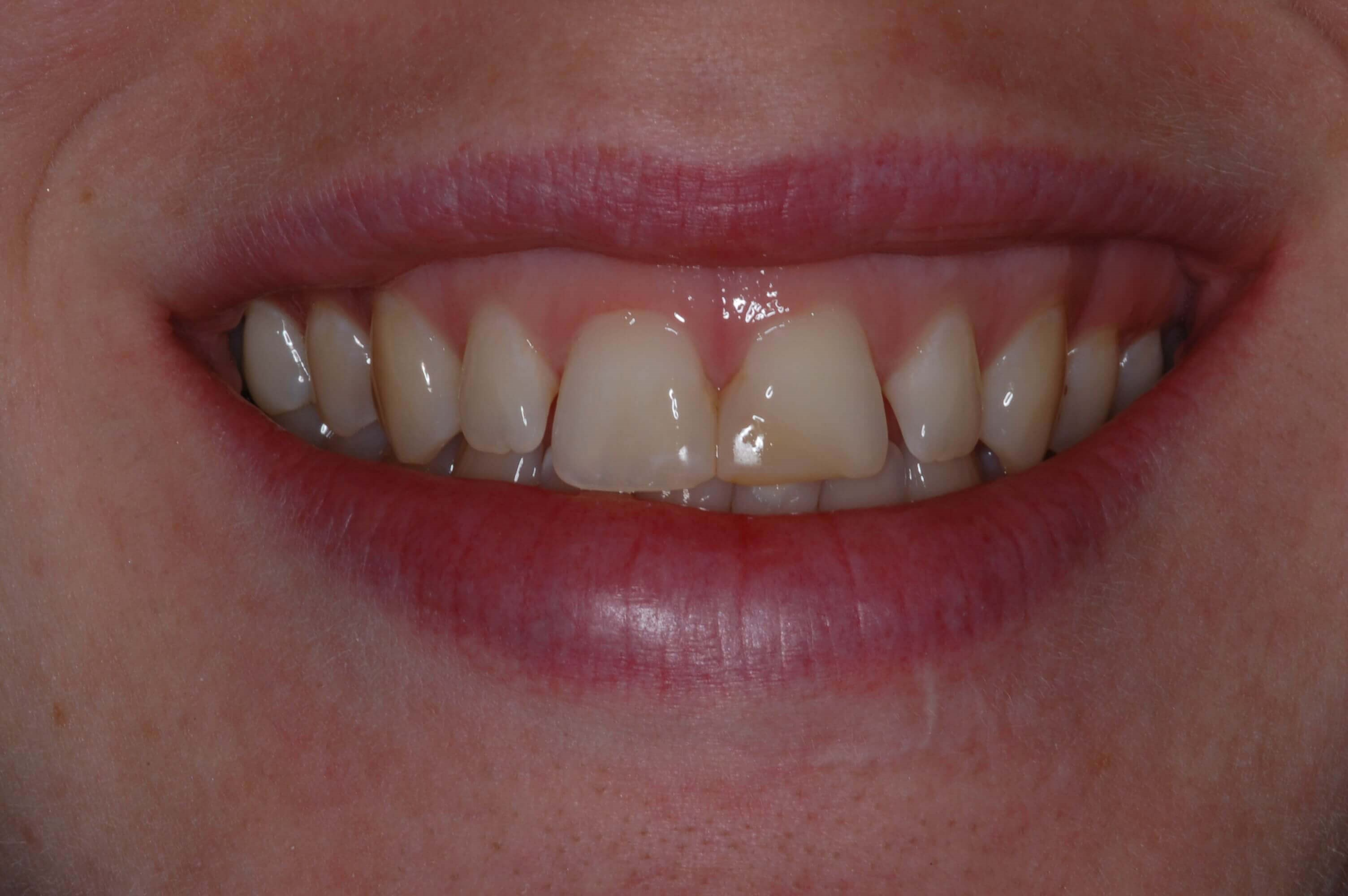 Zirconia Veneers Before