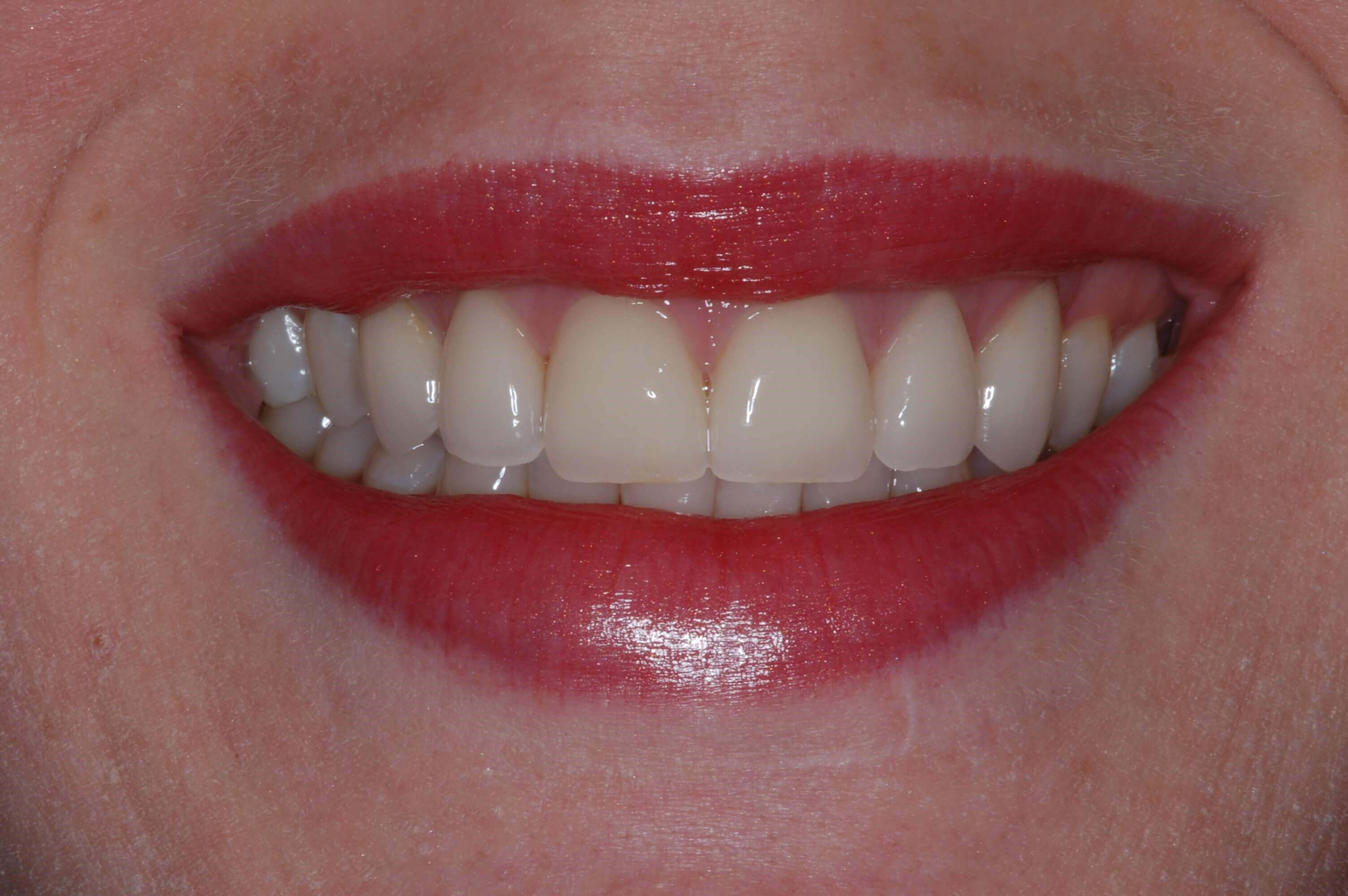 Zirconia Veneers After