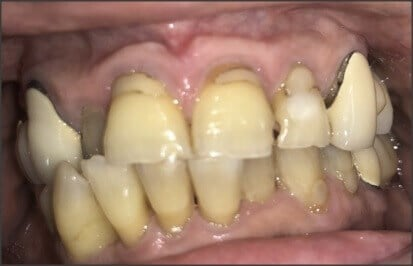 Upper Bridges and Crowns Before