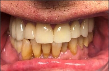 Upper Bridges and Crowns After