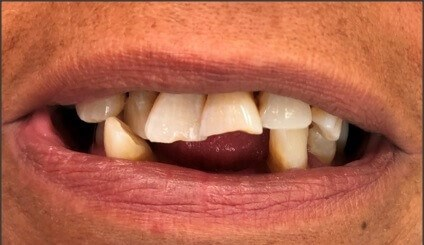 Upper and Lower Dentures Before