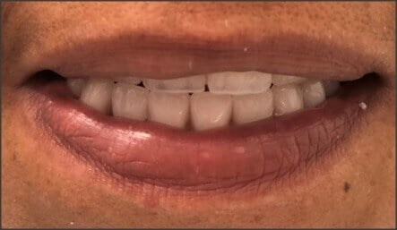 Upper and Lower Dentures After