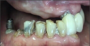 Overdenture Upper and Lower Before