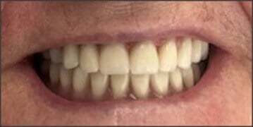 Overdenture Upper and Lower After