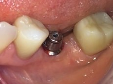Posterior Single Implant Crown Before