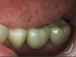 Posterior Single Implant Crown After