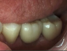 Posterior Single Implant After