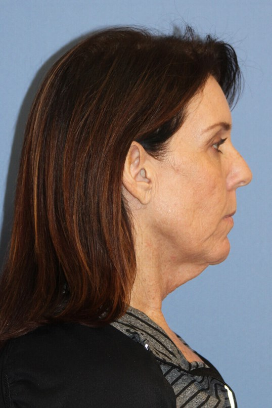 Facelift Before and After Before Side View