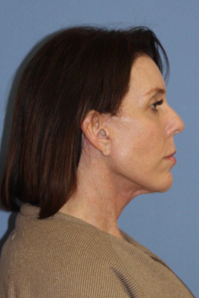 Facelift Before and After After Side View