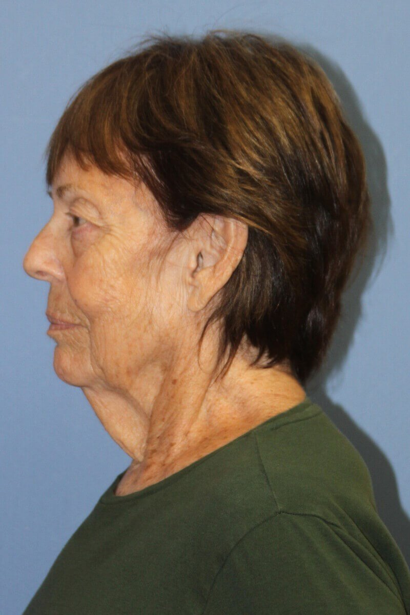 neck lift after weight loss Side View Before Facelift