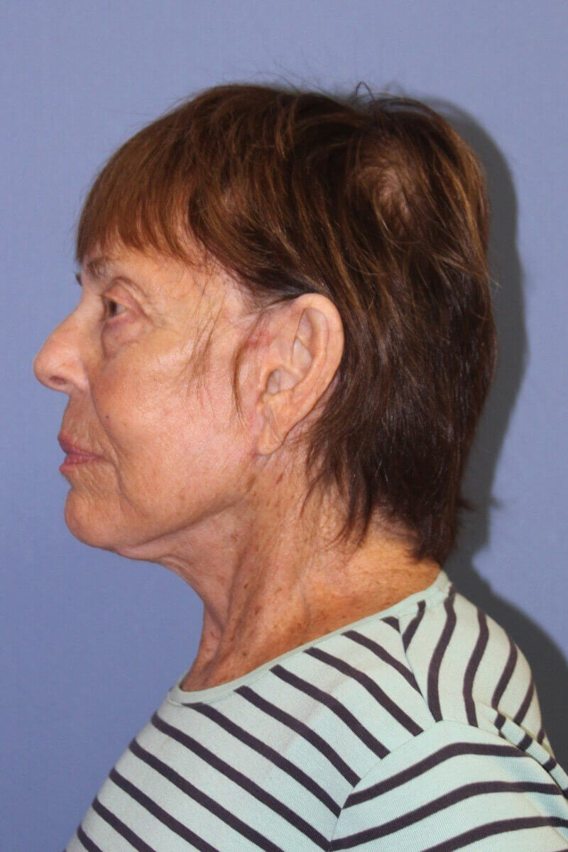 neck lift after weight loss Side View After Facelift