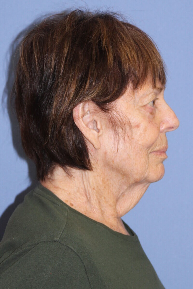 Facelift after weight loss Side View Before Facelift