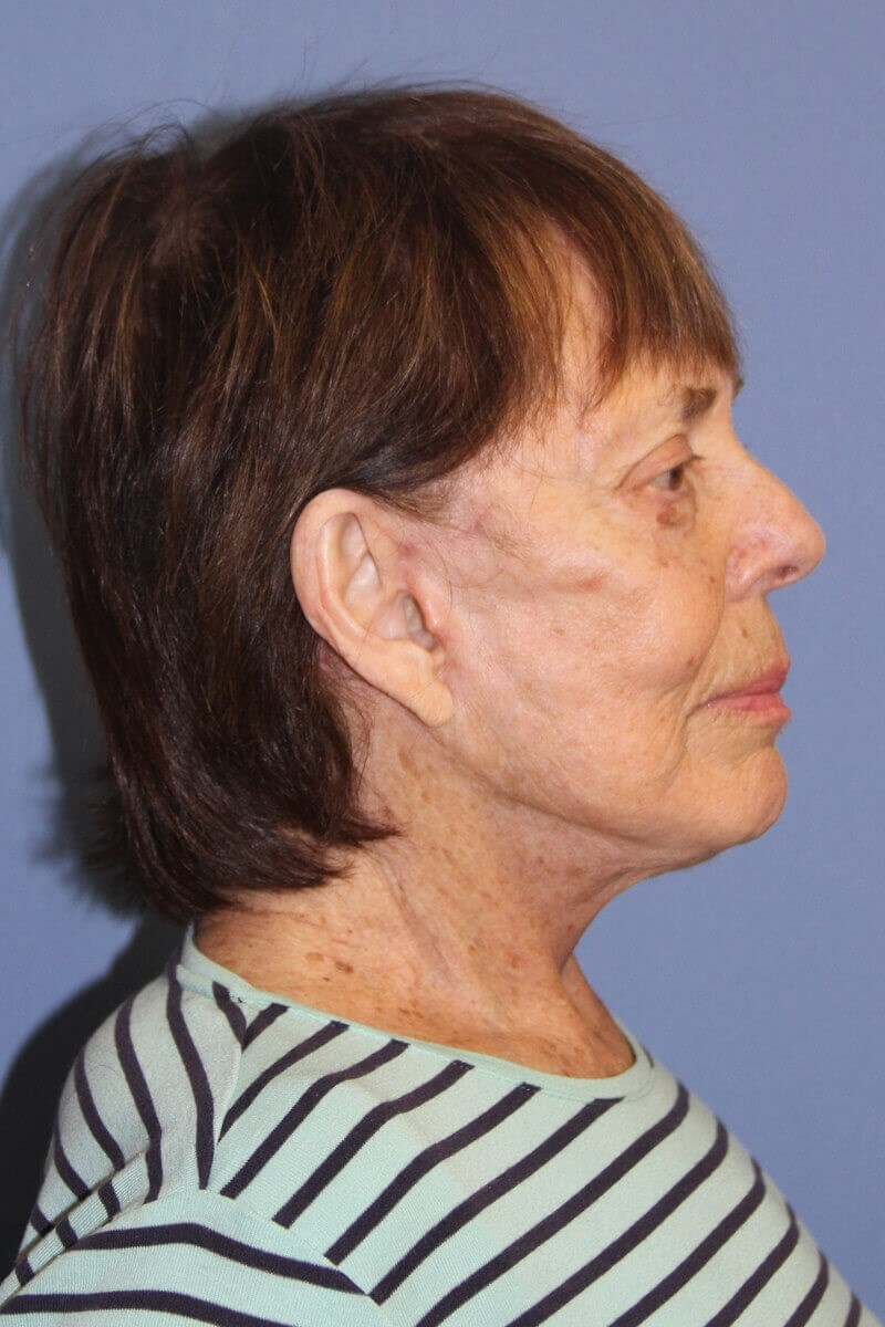 Facelift after weight loss Side View After Facelift