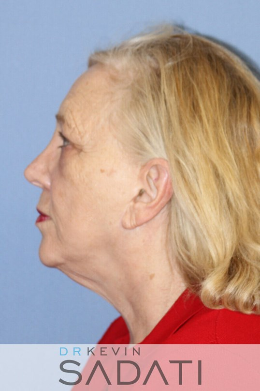 REvision neck lift Orange Coun Side View Before Facelift