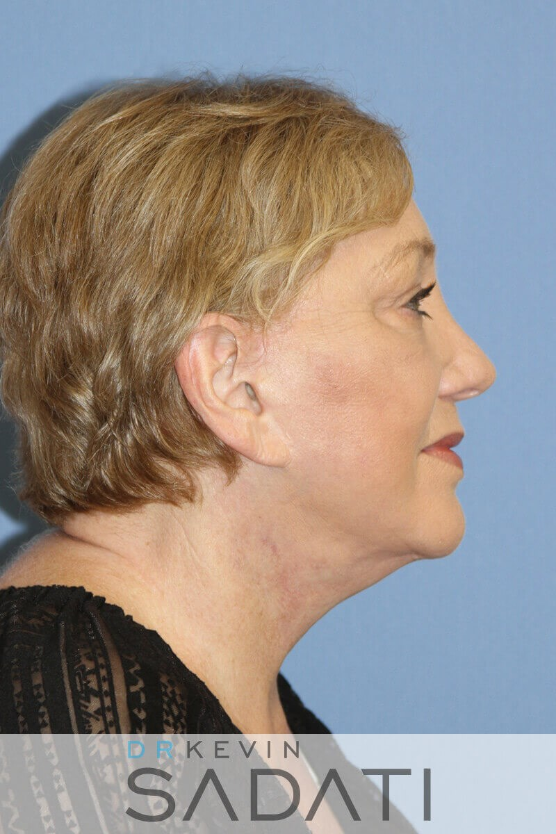 Eyelid surgery fat grafting Or Side View After Facelift