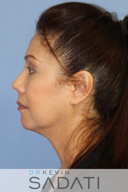 Female Facelift Newport Beach Female Facelift Before Surgery