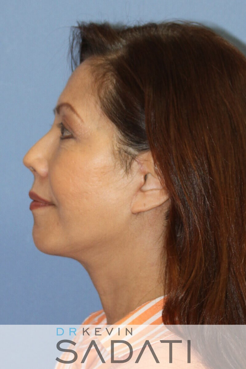 Female Facelift Newport Beach Female Facelift After Surgery