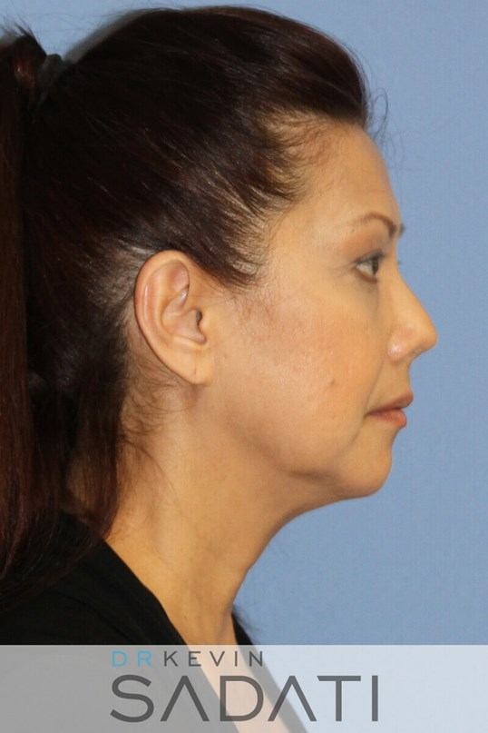 Female Neck lift Newport Beach Female Facelift Before Surgery