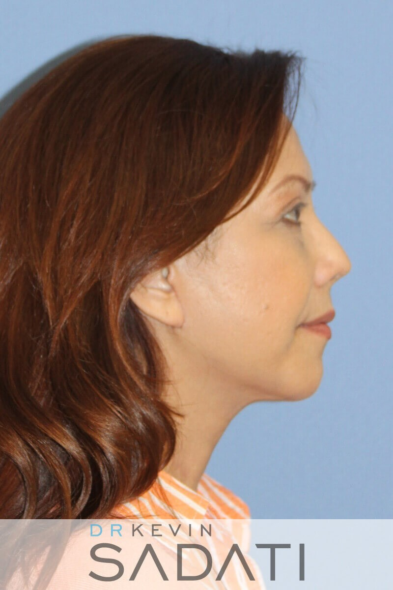 Female Neck lift Newport Beach Female Facelift After Surgery