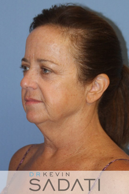 Huntington Beach  surgery Female Facelift Before Surgery