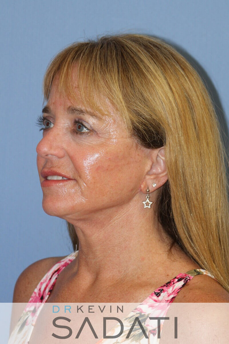 Huntington Beach  surgery Female Facelift After Surgery