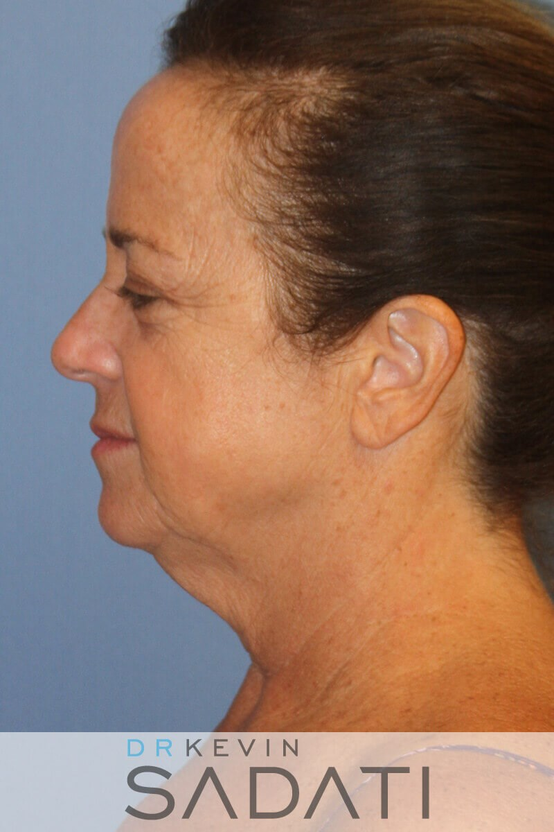 Huntington Beach Neck lift Female Facelift Before Surgery